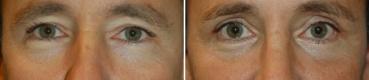 ניתוח עפעפיים לעומת ניתוח פנים כולל
